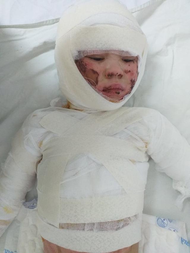 Tiếng khóc xé lòng của bé gái xinh xắn bỏng nặng toàn thân vì cồn đổ vào người  - Ảnh 2.