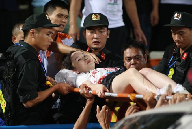 Lực lượng an ninh và bác sĩ chuyển nữ CĐV đi thương vì pháo sáng đi bệnh viện. Ảnh: Vnexpress