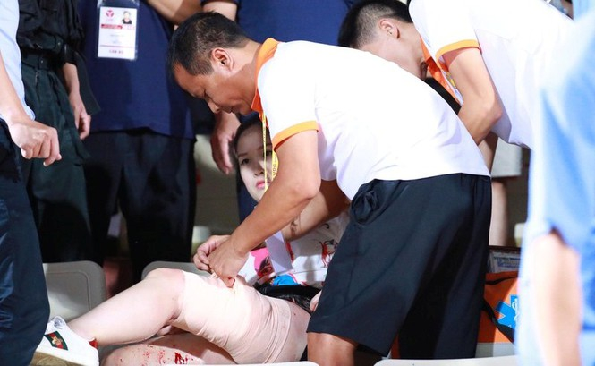 Nữ khán giả bị thương vì trúng pháo sáng trận Hà Nội - Nam Định - ảnh 2